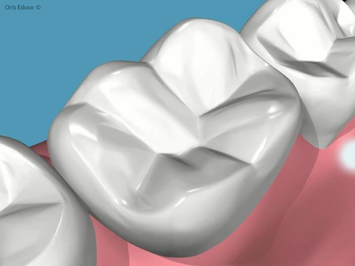 Situacion inicial antes de la caries dental