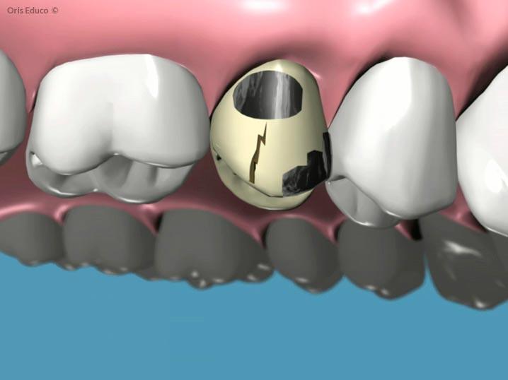 Antigua corona dental