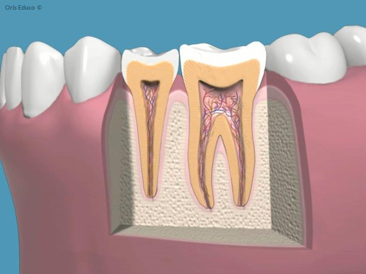 Estado inicial con diente sano