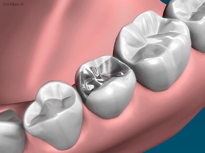 Incrustación dental con situación inicial de empaste metálico