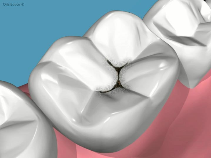Diente afectado con caries dental
