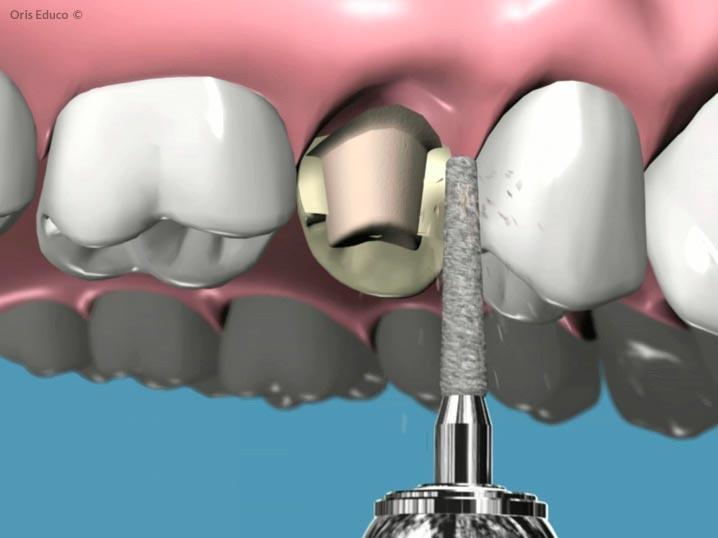 Tallado de la corona dental
