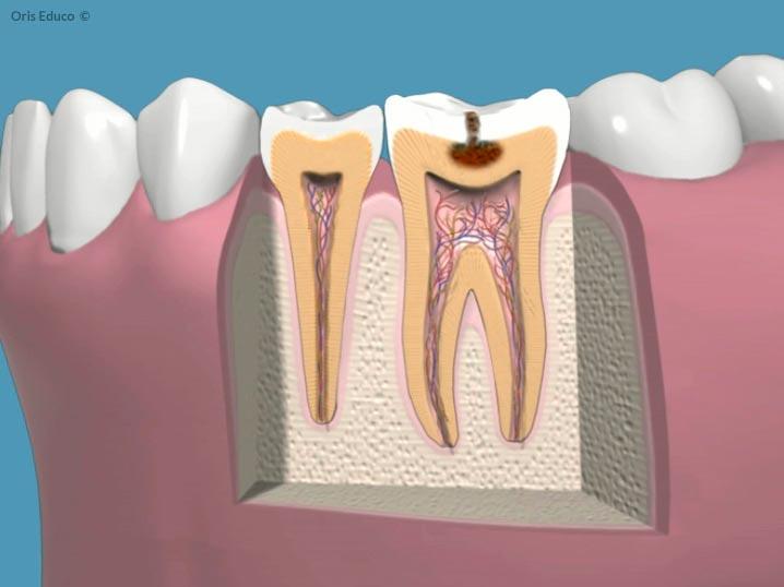 Endodoncia la caries empieza a afectar la dentina