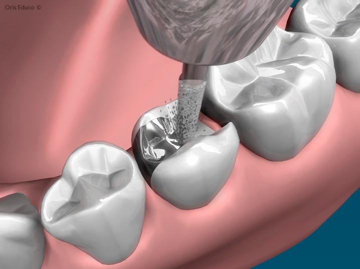 Tallado del diente - Sustitución de la amalgama dental