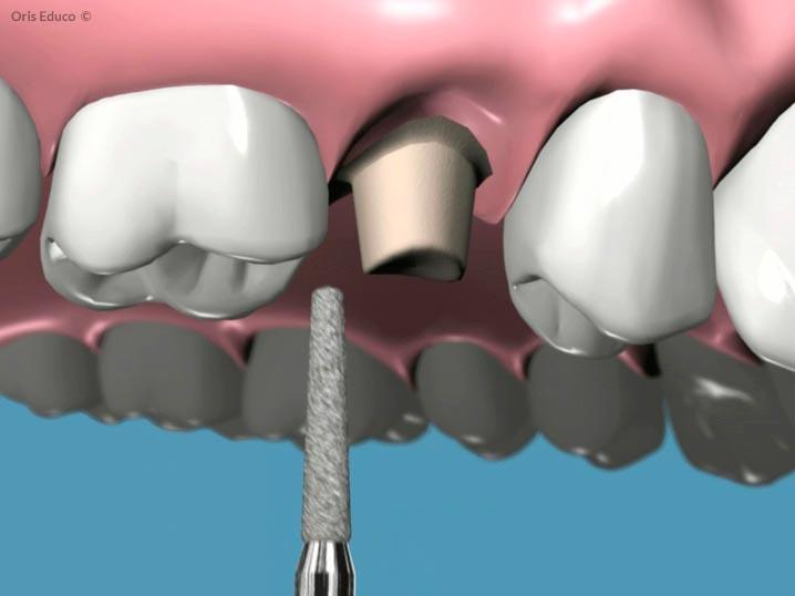 Tallado total de la corona dental