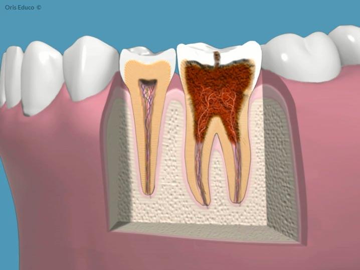 Caries dental profunda que afecta al nervio