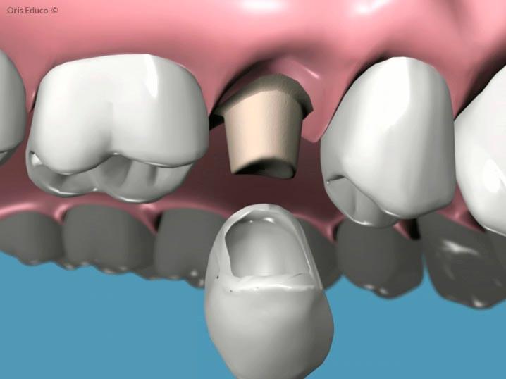 Confección de la corona dental