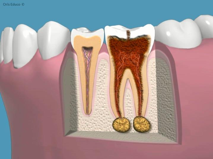 Endodoncia severa con lesión periapical
