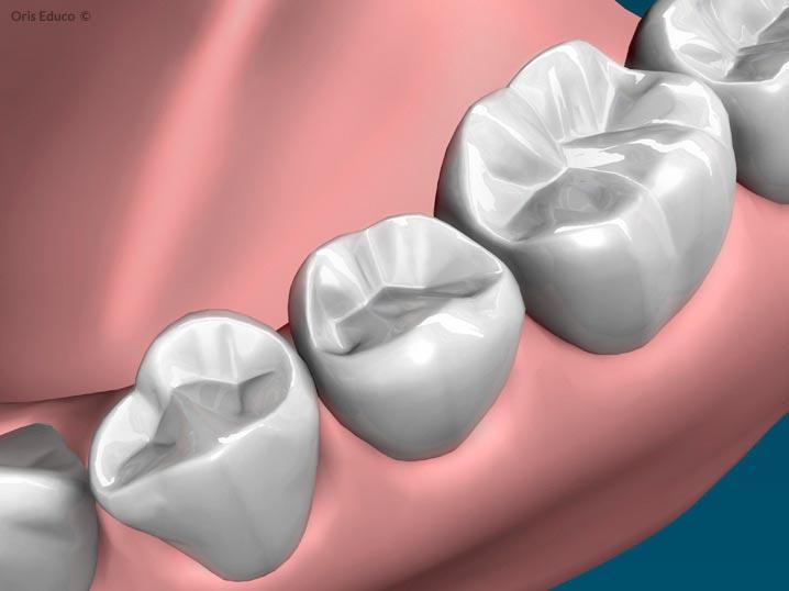 Resultado final de la incrustación dental
