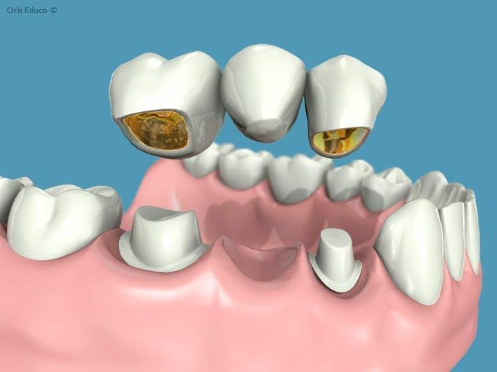 Confección del puente dental
