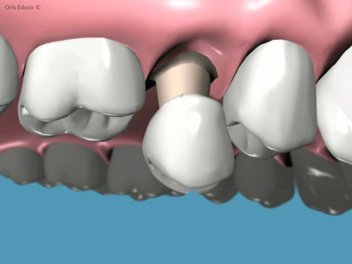 Cementado de la corona dental