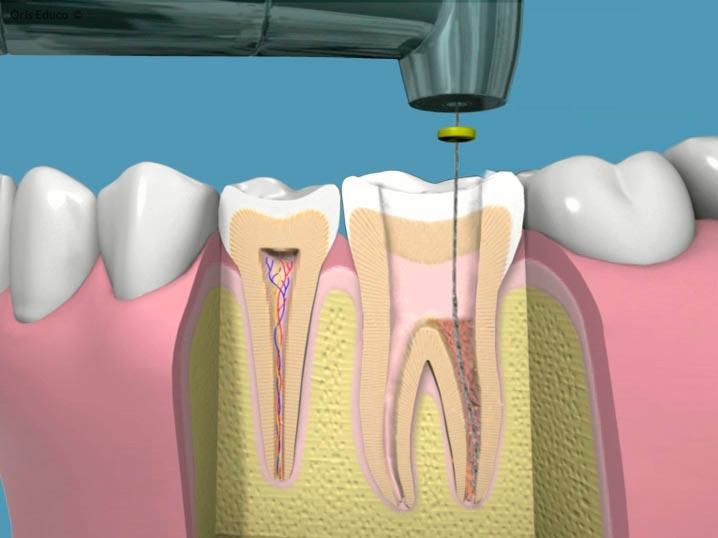 Llimpieza de los conductos dentales