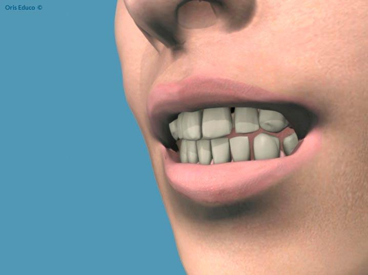 Situación inicial previo blanqueamiento dental