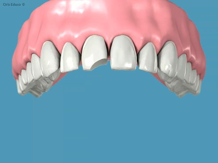 Situación incial con diente roto