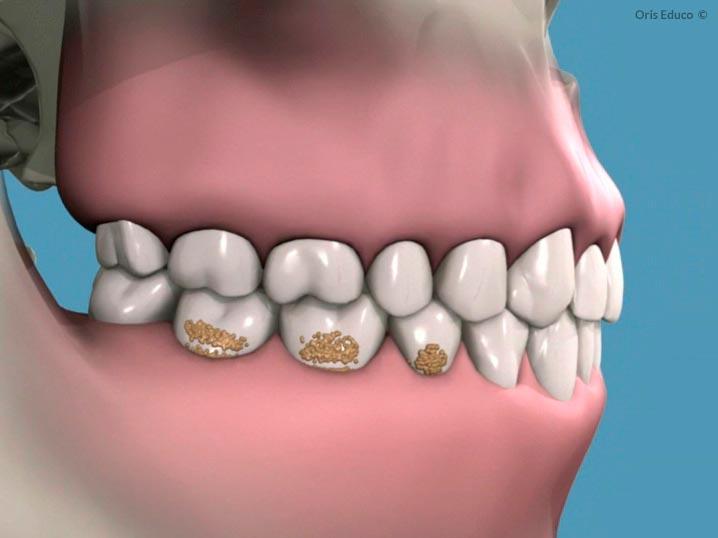 Acumulación de sarro en dientes y encías
