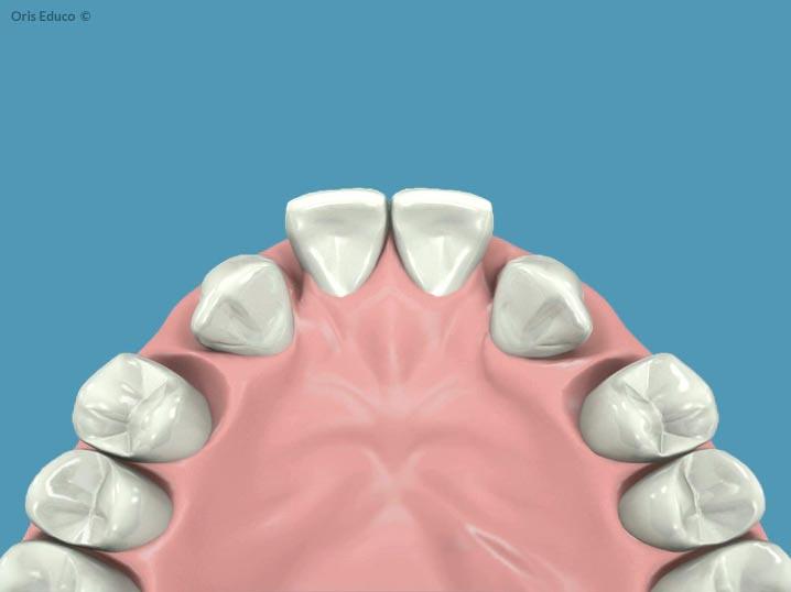 Ausencia de incisivos para ortodoncia inicial