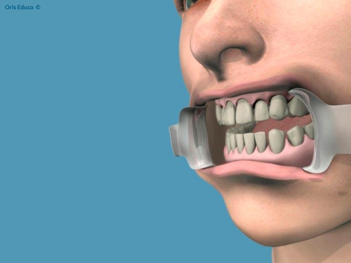 Proceso de separación de los labios