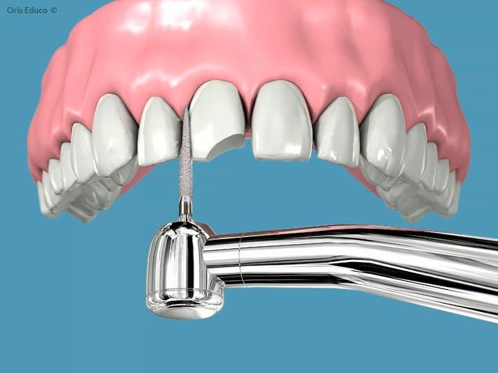 Tallado del diente para su restauración