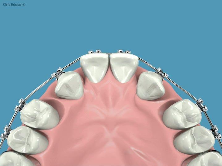 Colocación de los brackets y arco