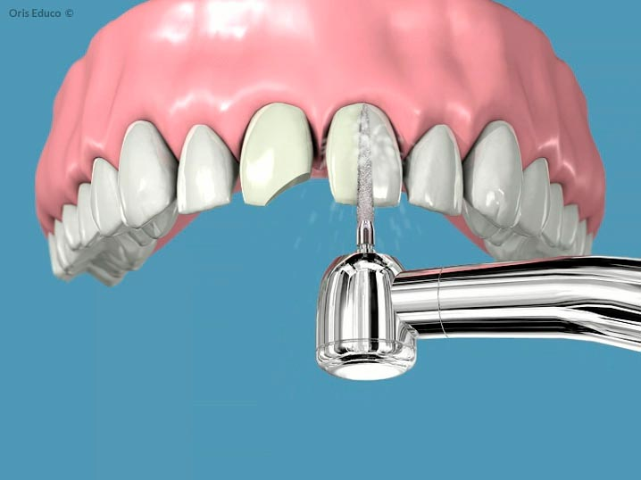 Tallado de dientes para su restauración
