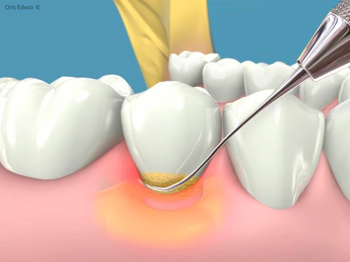 Fase de curetaje en gingivitis