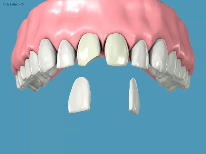 Confección de las carillas dentales