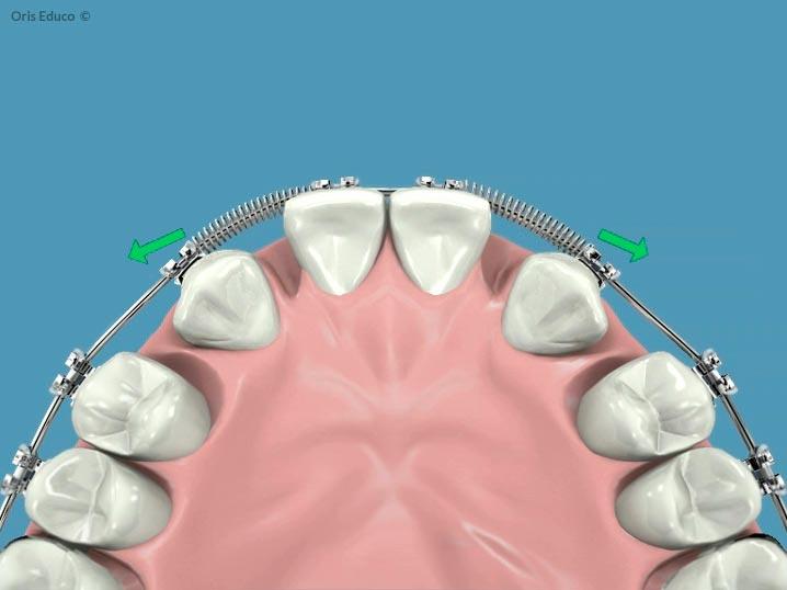 Desplazamiento de las piezas dentales mediante muelles