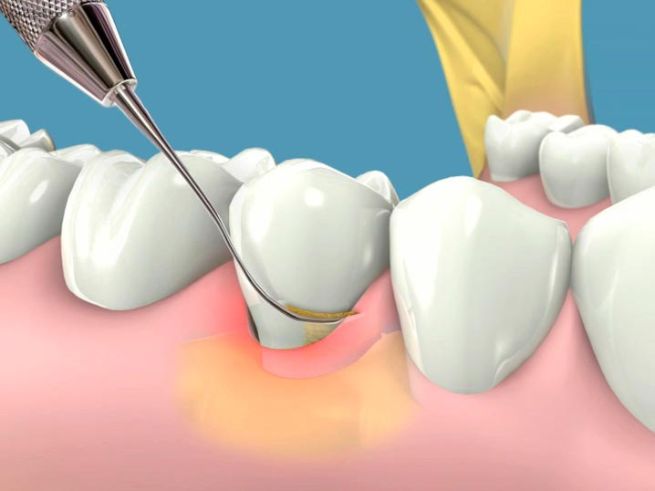Fase 2 del curetaje en Gingivitis