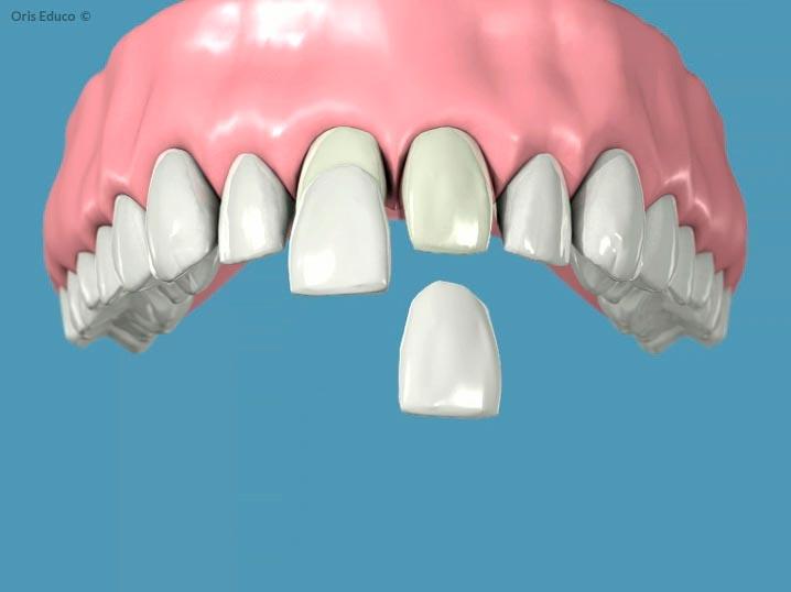 Fase de cementado de las carillas dentales