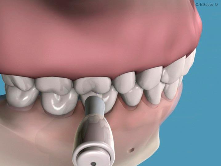 Pulido dental con copa de goma