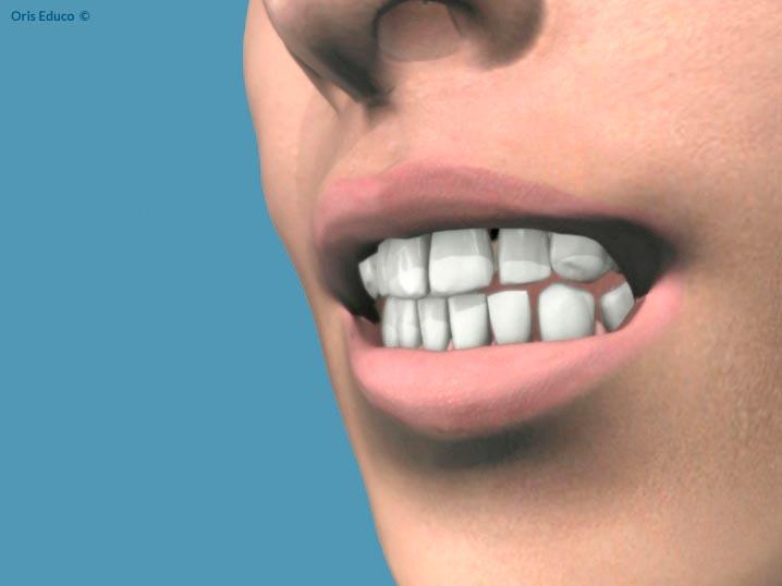 Resultado final con dientes blancos