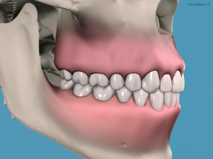 Resultado final tras Profilaxis: dientes limpios
