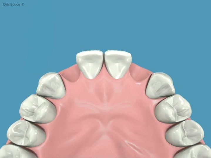 Posición de los dientes incisivos corregidos