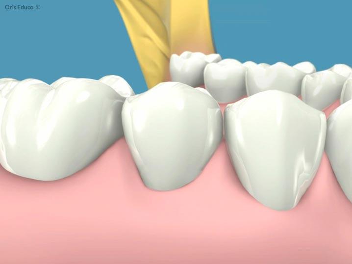 Resultado final diente sin gingivitis