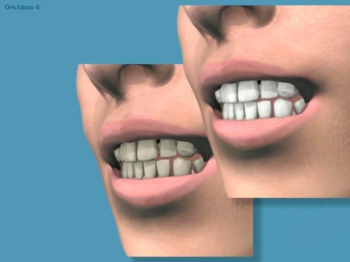 Comparación antes después del blanquamiento dentals