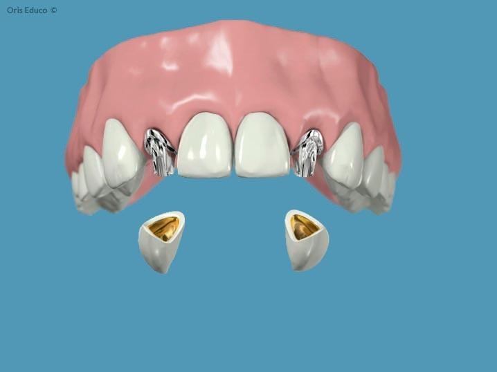 Fijación de las coronas dentales
