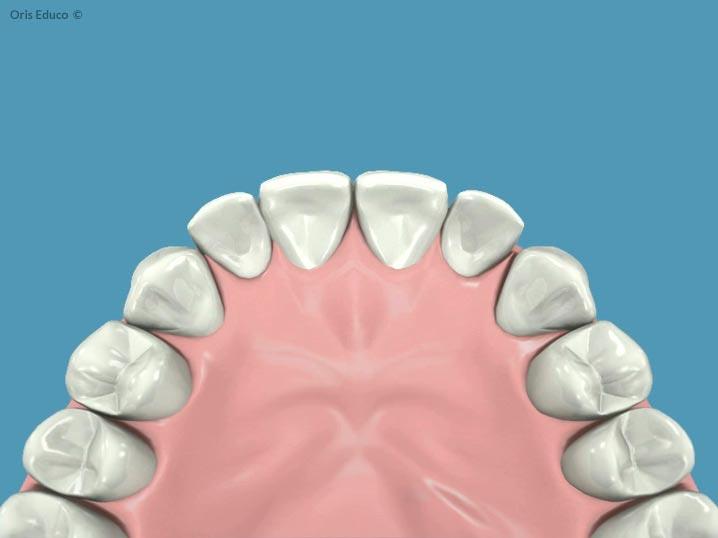 Resultado final tras ortodoncia e implantes