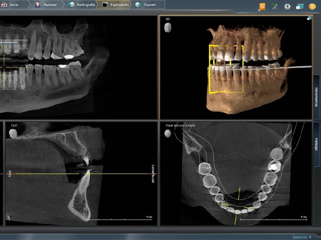 Radiografía 3D realizada en Sidexis 4